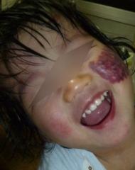 2歳3ヶ月左頬レーザー4日目4k