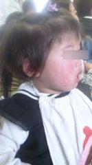 1歳7ヶ月右頬レーザー3週間k