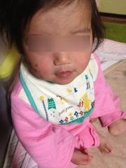 1歳3ヶ月右頬レーザーk