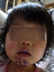 2歳2ヶ月右頬レーザー3k